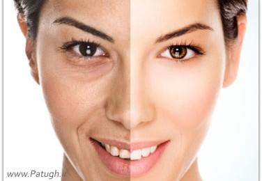 طب سوزنی و تاثیر ان بر پوست