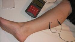 گرقتگی ساق پا
