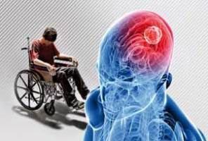 تاثير ماساژ درماني در درمان بيماري ام اس