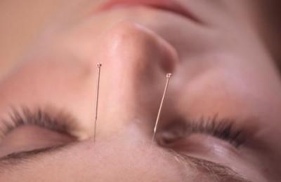 درمان سردرد ميگرني با طب سوزنی